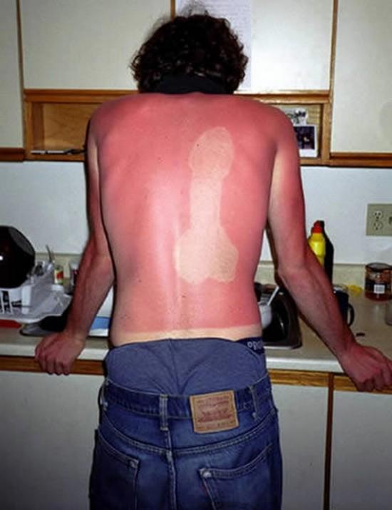 Problema con la crema solar