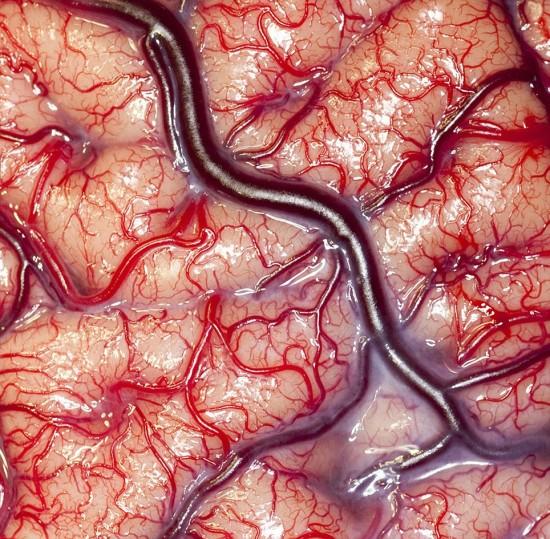 Así es el cerebro humano