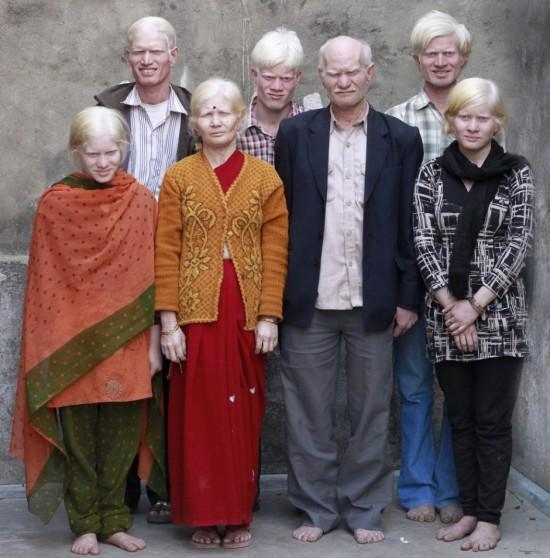 Familia albina
