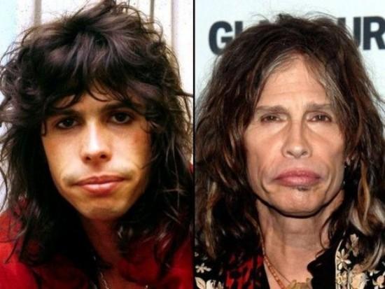 Steven Tyler antes y después